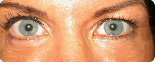upper eye lid surgery